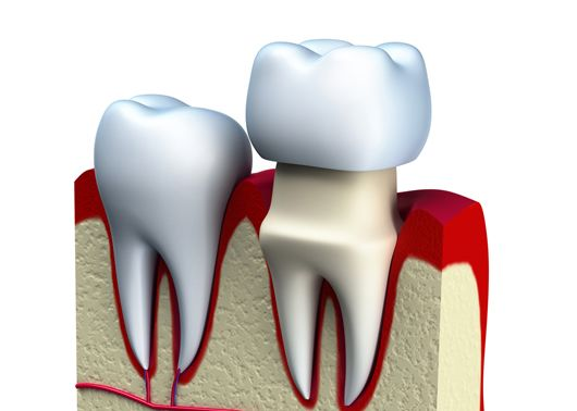 The Importance of Crown Placement After Root Canal Treatment